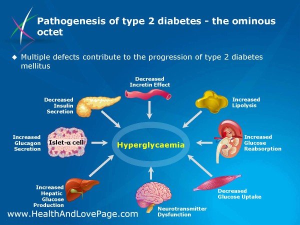 Type 2 Diabetes - Pathogenesis
