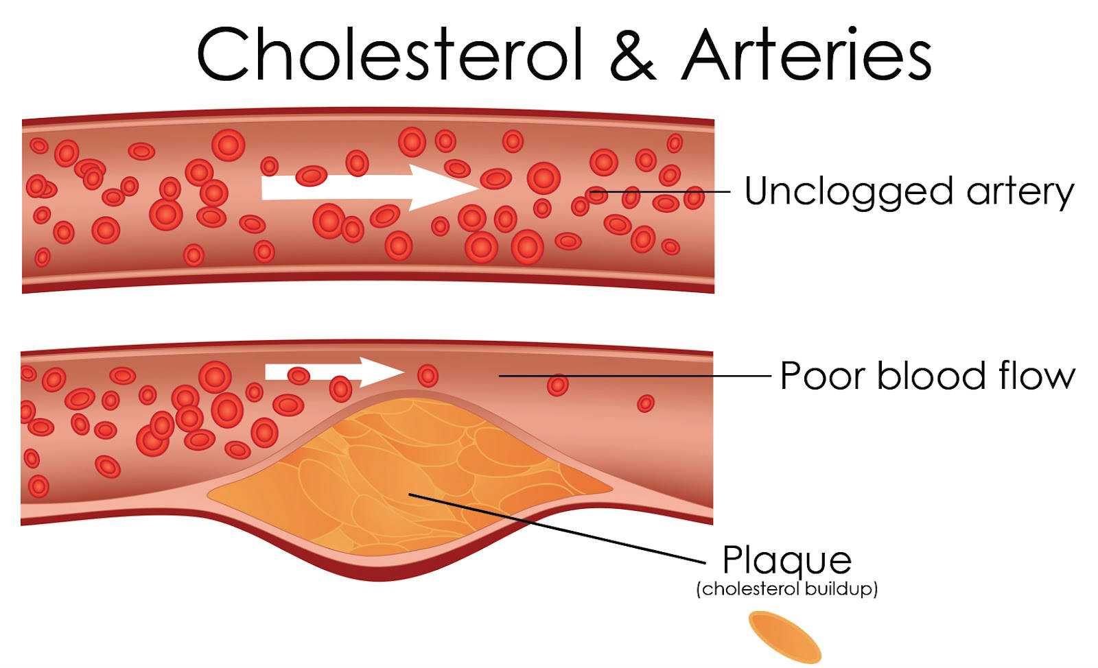 pics 5 Simple Ways To Improve Your Cholesterol