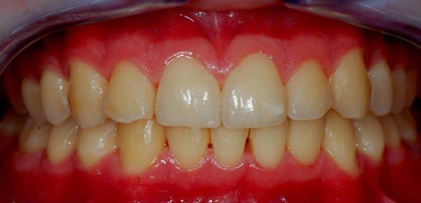 Gingivitis - After Treatment