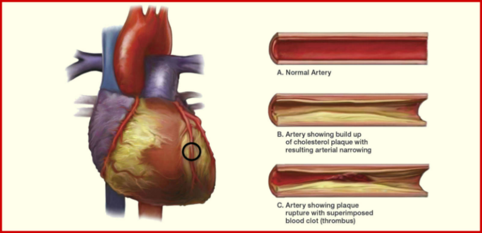 Atherosclerosis - Purify Your Clogged Arteries with This ...