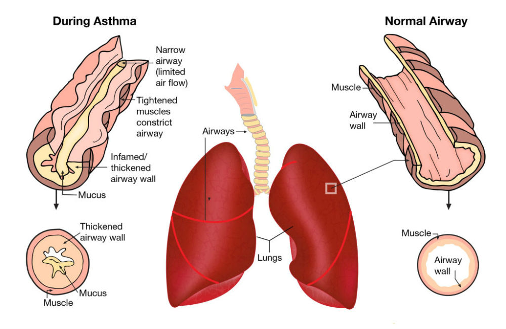 Remedy for Asthma