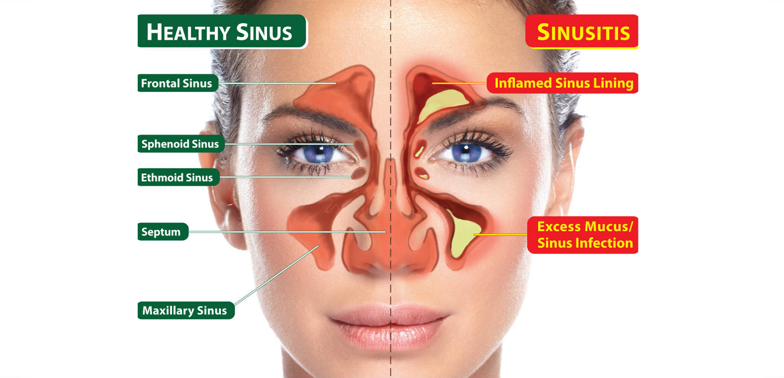 The Best 6 Sinus Infection Home Remedies Health And Love Page