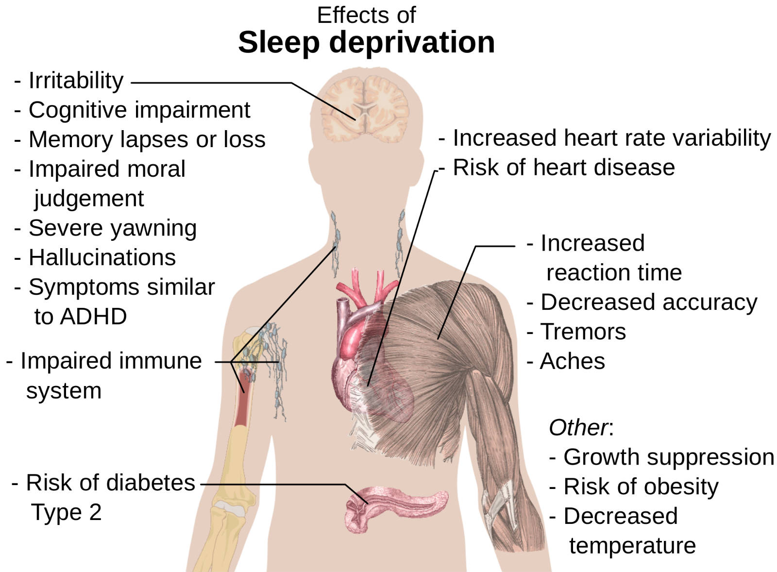 How Long To Nap - Sleep Deprivation