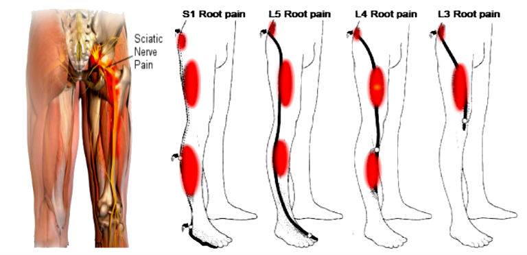 Natural Treatments For Sciatic Pain