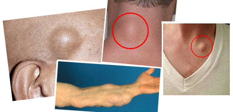 How To Get Rid Of Fat Lumps Under Skin Naturally
