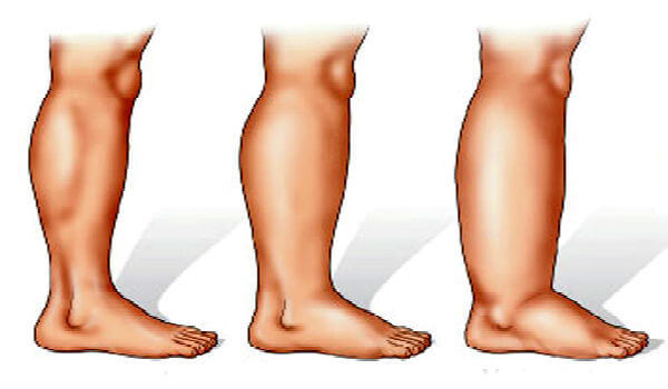 how to stop swelling in legs and feet