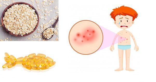 How To Get Rid of Eczema Naturally With Fish Oil and Oatmeal