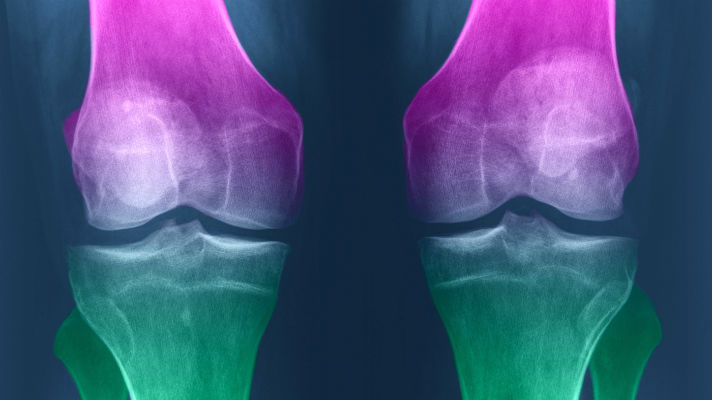 Can Cartilage Regenerate Naturally