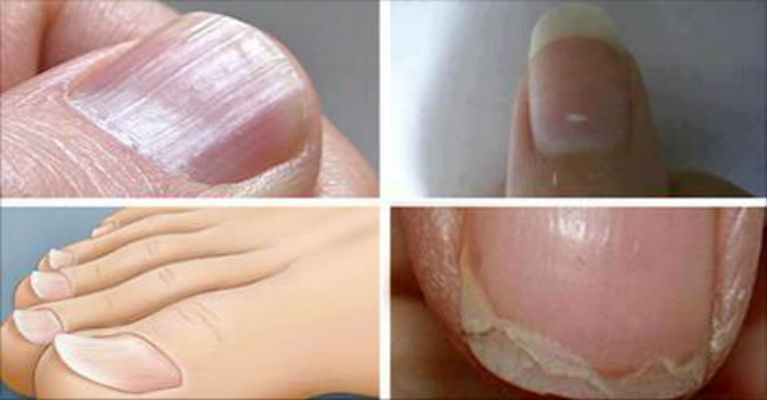 7 Common Nail Conditions