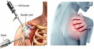 Ease The Frozen Shoulder Joint Pain
