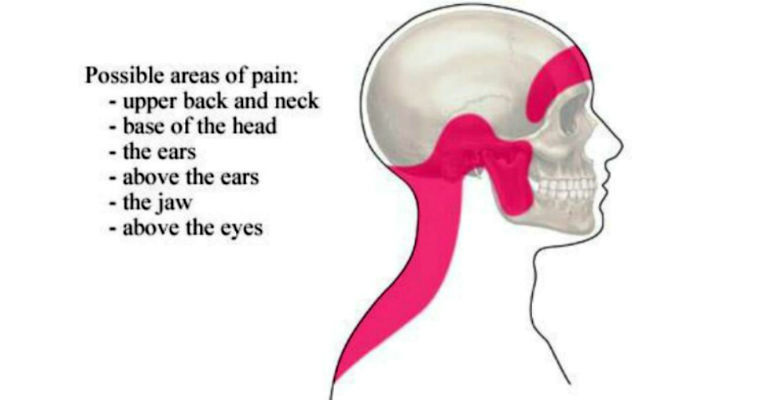 Vitamin B Deficiency Causes Migraines And Headaches And