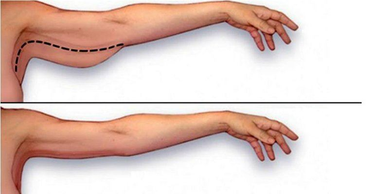 Exercises To Lose Arm Fat 84