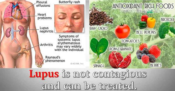 The Best Natural Alternative Treatments for Lupus
