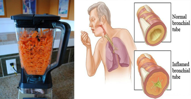 Carrots natural food to remove cough and phlegm from your lungs carrots the natural food to removing cough and phlegm from your lungs forumfinder Images