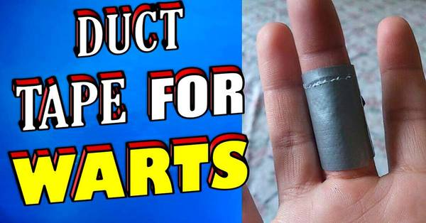 Duct Tape for Removing Warts – This Treatment is Backed by Science