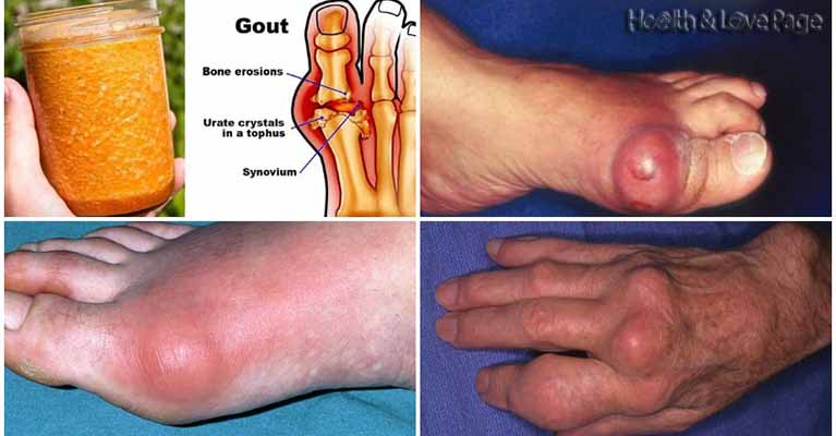 what foods have no uric acid gout medication starts with a c medicine to reduce uric acid in body