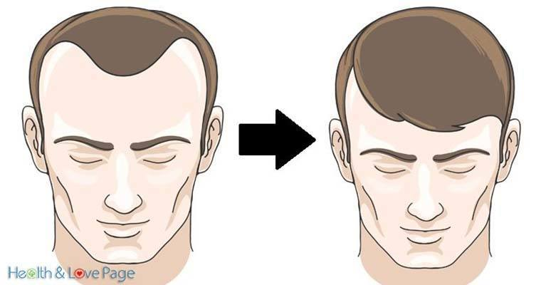 10 Foods that Reverse Hair Loss in No Time!