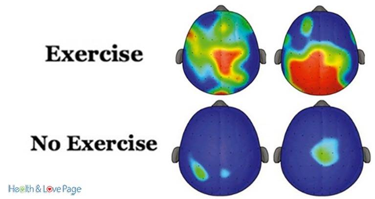 Exercise Is Adhd Medication >> Exercise Is Adhd Medication Health And Love Page