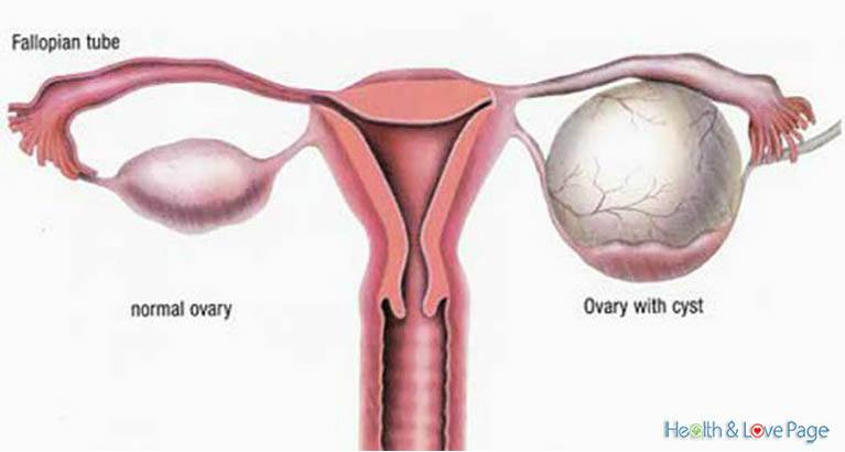 How to Shrink Ovarian Cysts