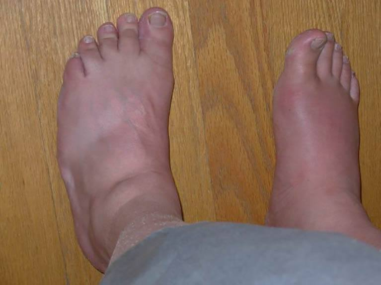 increased uric acid side effects uric acid level high in urine gout pain baking soda