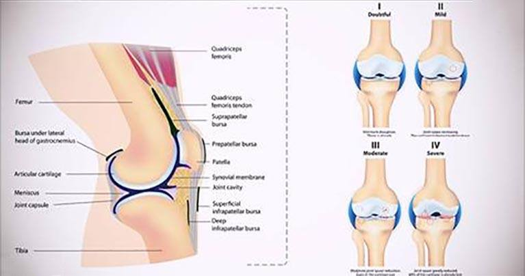 5 Simple Workouts You Can Do To Make Your Knees Strong