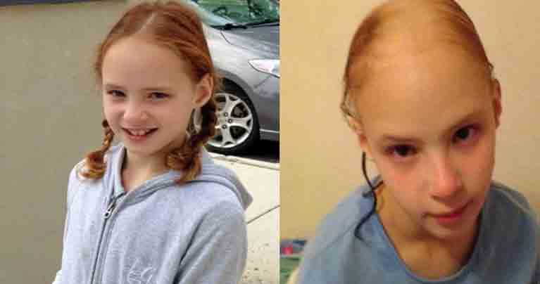 Warning! This Little Girl Lost Her Beautiful Hair After Using a Popular Hair Product