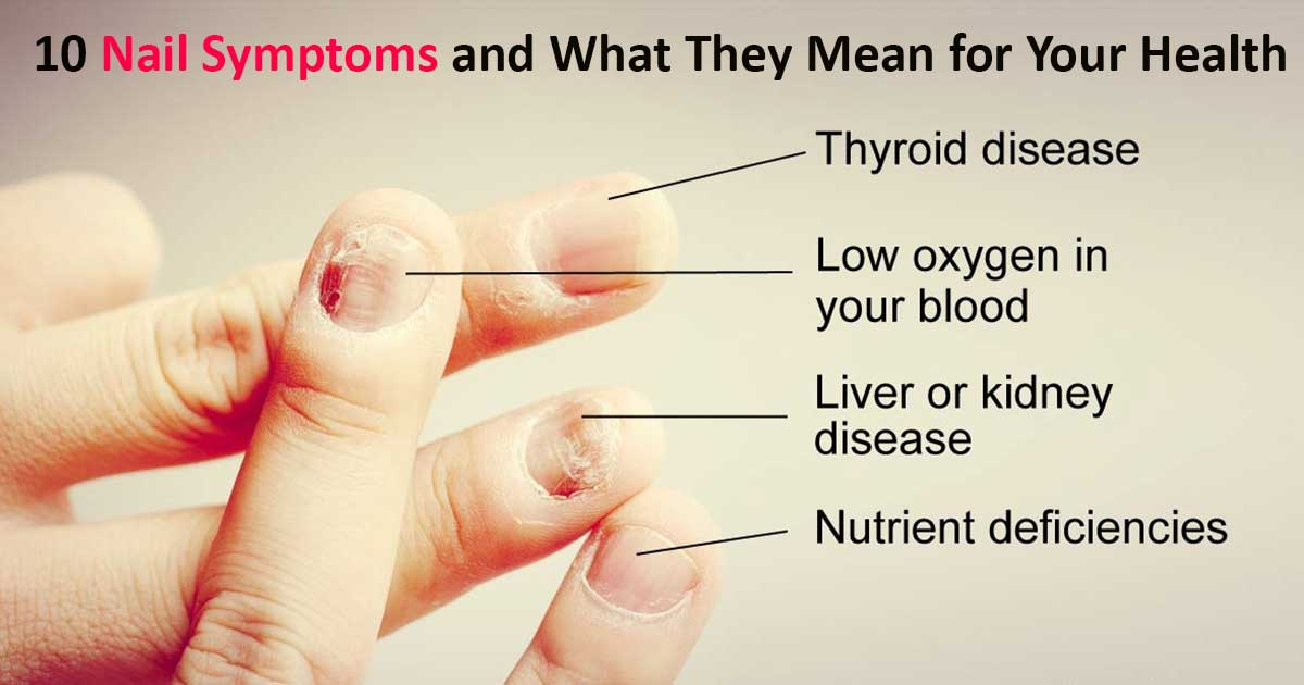 10 Pictures of What Your Nails Say about Your Health
