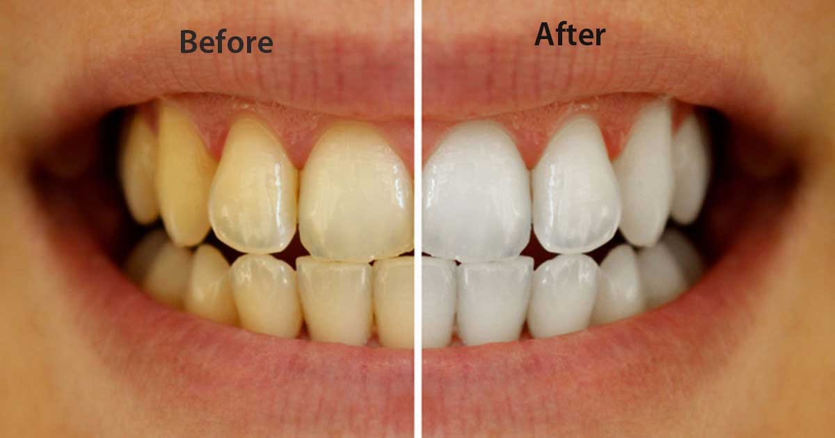 7 Incredible Ways to Whiten Your Teeth Naturally