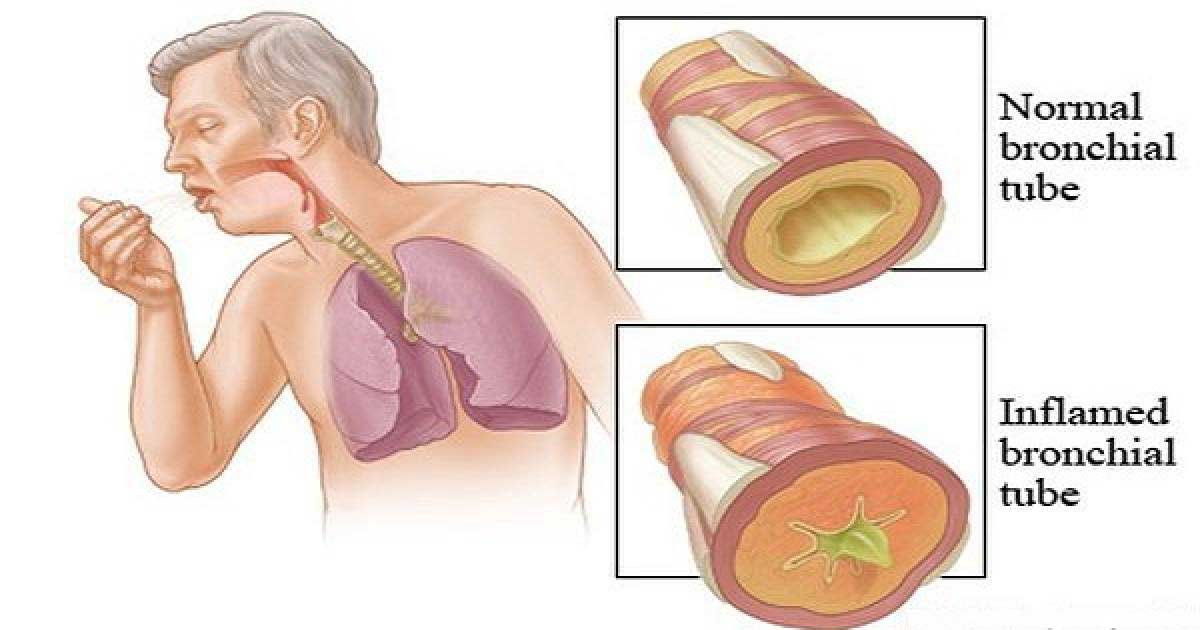 Clear Phlegm from Chest and Throat Naturally with Instant Result