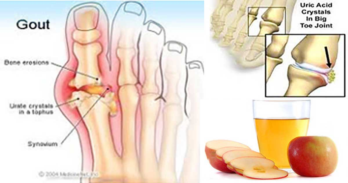 How to Remove Uric Acid in Joints and Treat Gout and Arthritis Pain