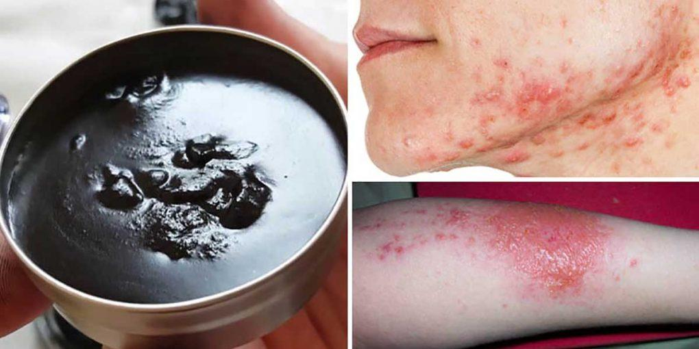 See Why the Amish People Used The Black Healing Salve to Treat Almost Any Skin Problem