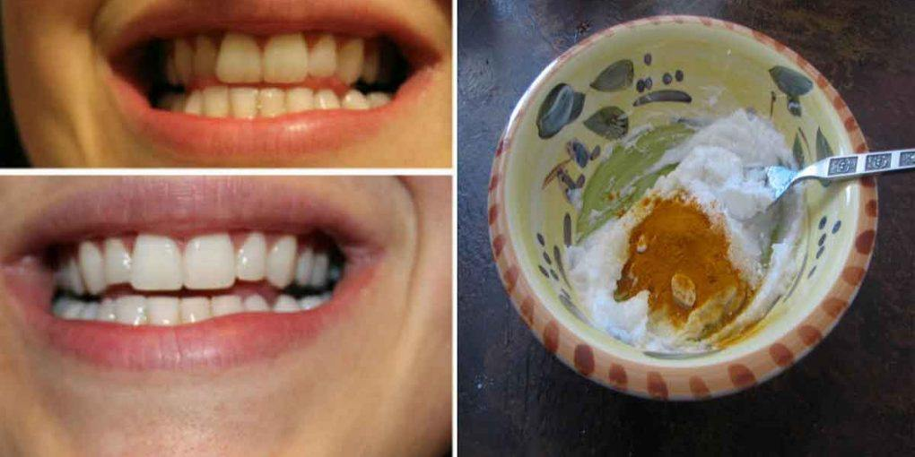 Turmeric Toothpaste that Fights Gum Disease and Whitens Teeth