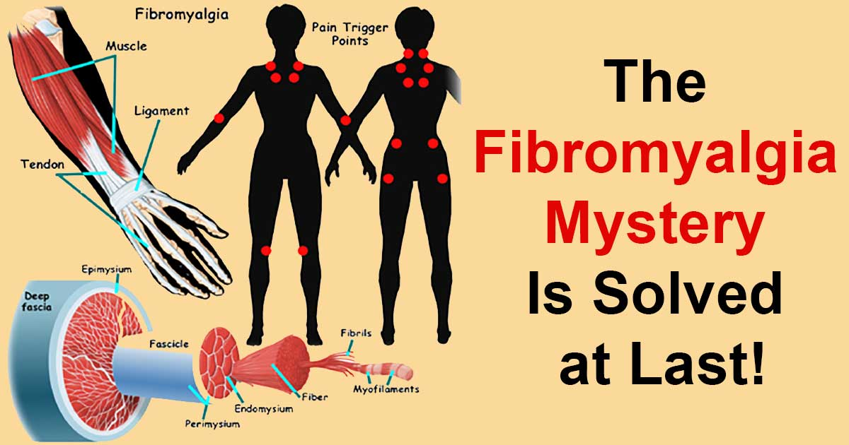 Groundbreaking Discovery Which Could Change the Treatment of Fibromyalgia