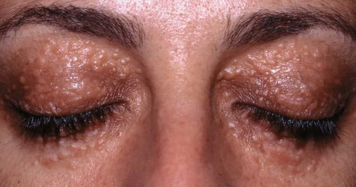 How to Remove Syringomas Permanently at Home?