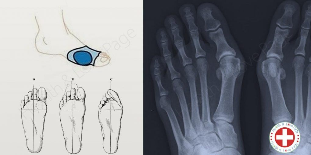 What Are Bunions and How to Treat Them