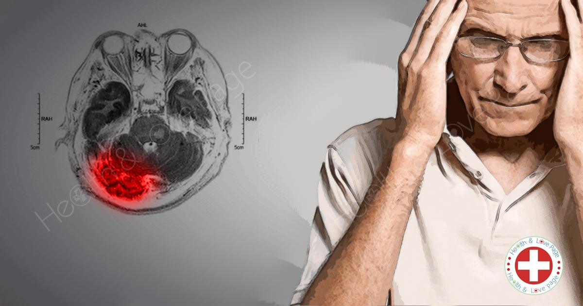 A New Drug That Brings Hope for Stroke Victims