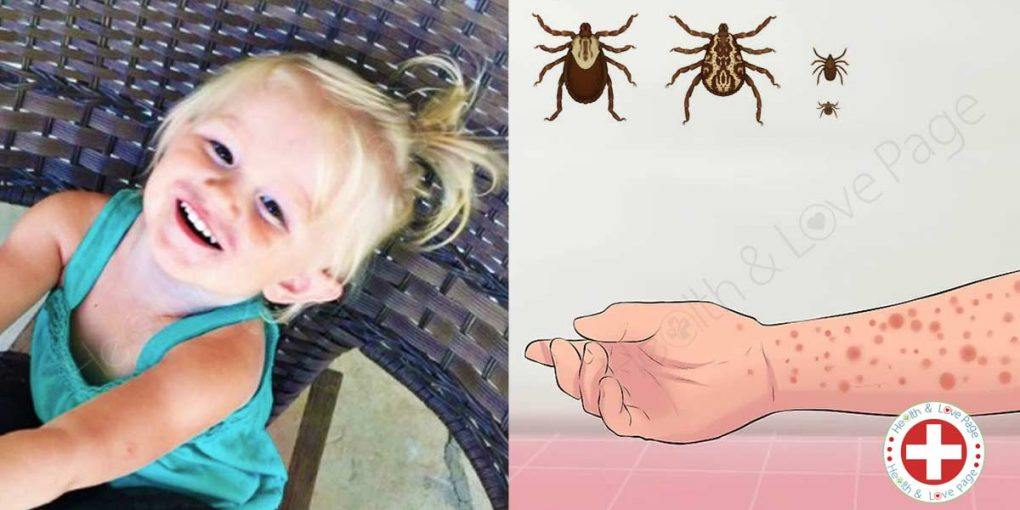 Tick Bite Might Be the Reason for a Toddler's Death